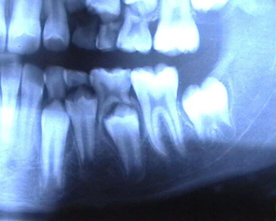 Röntgenbild Gebiss